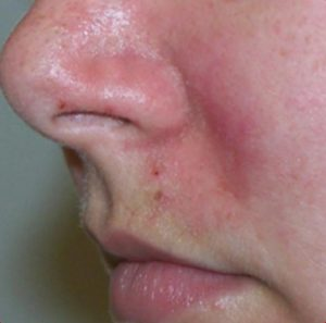 Couperose & Rosacea after 1