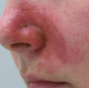 Couperose & rosacea before 1